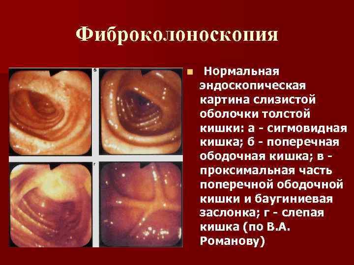 Фиброколоноскопия n Нормальная эндоскопическая картина слизистой оболочки толстой кишки: а - сигмовидная кишка; б