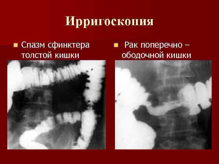 Ирригоскопия n Спазм сфинктера толстой кишки n Рак поперечно – ободочной кишки