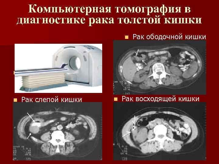 Компьютерная томография в диагностике рака толстой кишки n n Компьютерный томограф n Рак слепой