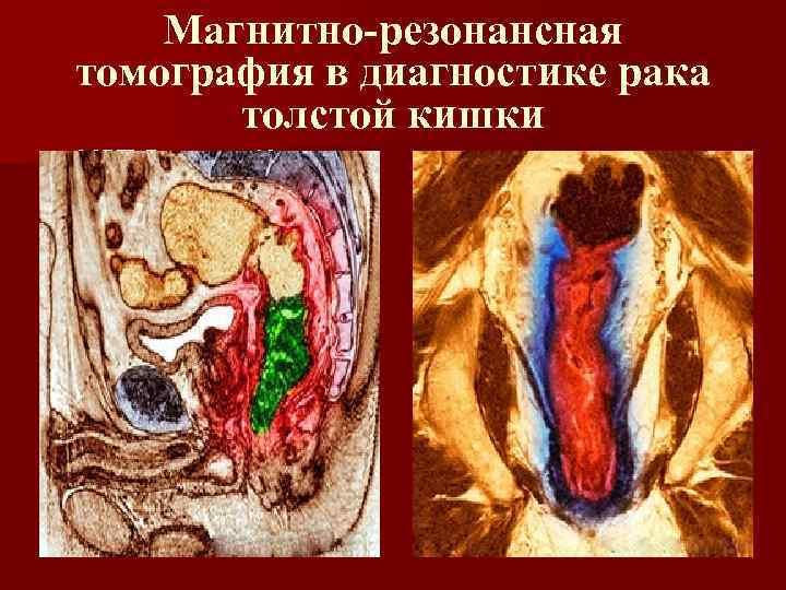 Магнитно-резонансная томография в диагностике рака толстой кишки n МРТ Р. толст. К