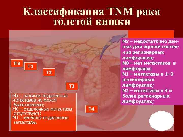 Классификация TNM рака толстой кишки Tis Nх – недостаточно данных для оценки состояния регионарных