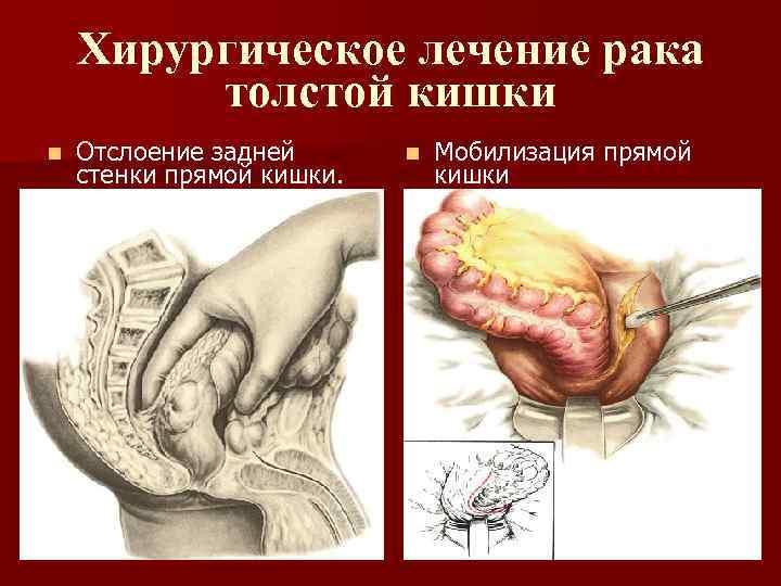 Хирургическое лечение рака толстой кишки n Отслоение задней стенки прямой кишки. n Мобилизация прямой