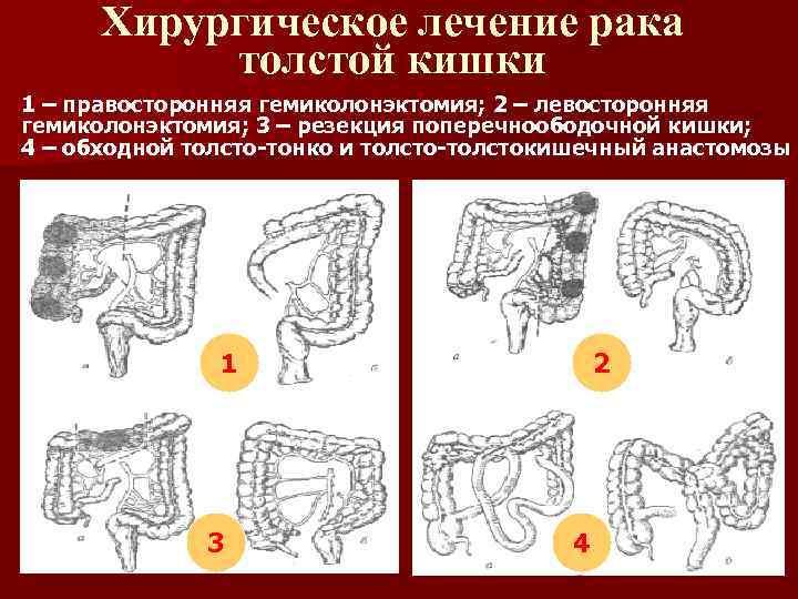 Хирургическое лечение рака толстой кишки 1 – правосторонняя гемиколонэктомия; 2 – левосторонняя гемиколонэктомия; 3