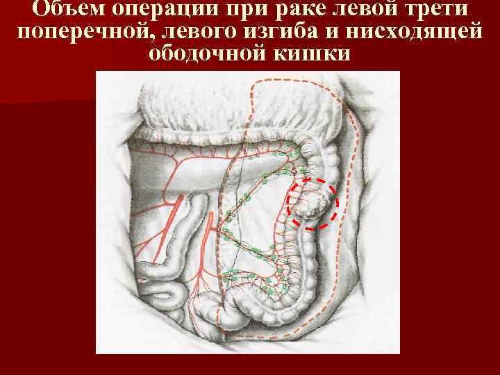 Объем операции при раке левой трети поперечной, левого изгиба и нисходящей ободочной кишки