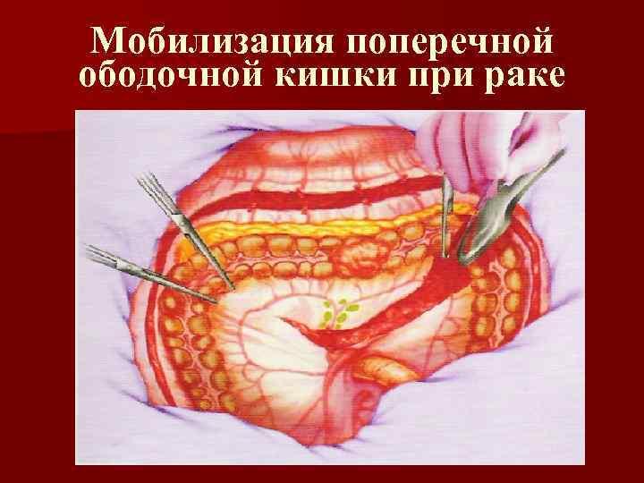 Мобилизация поперечной ободочной кишки при раке