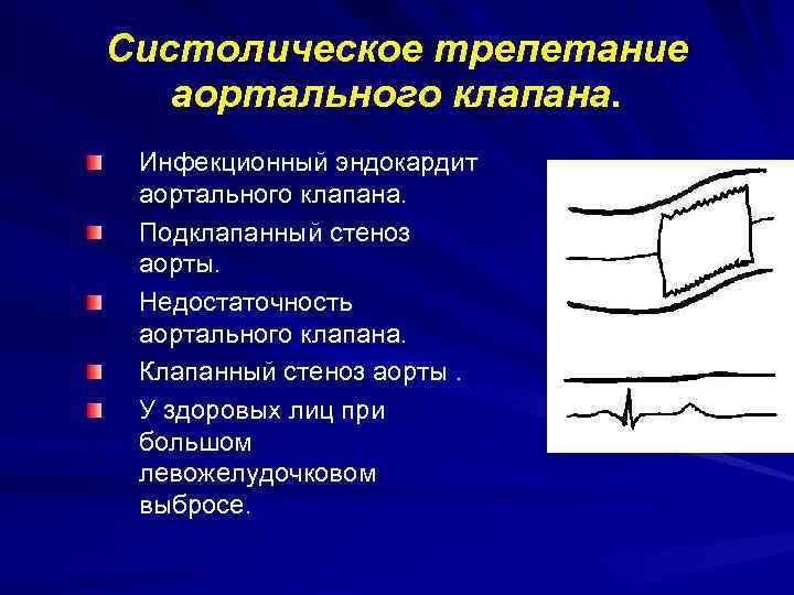 Систолическое трепетание аортального клапана. Инфекционный эндокардит аортального клапана. Подклапанный стеноз аорты. Недостаточность аортального клапана.