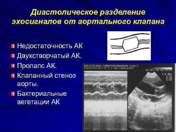 Диастолическое разделение эхосигналов от аортального клапана Недостаточность АК Двухстворчатый АК. Пролапс АК. Клапанный стеноз