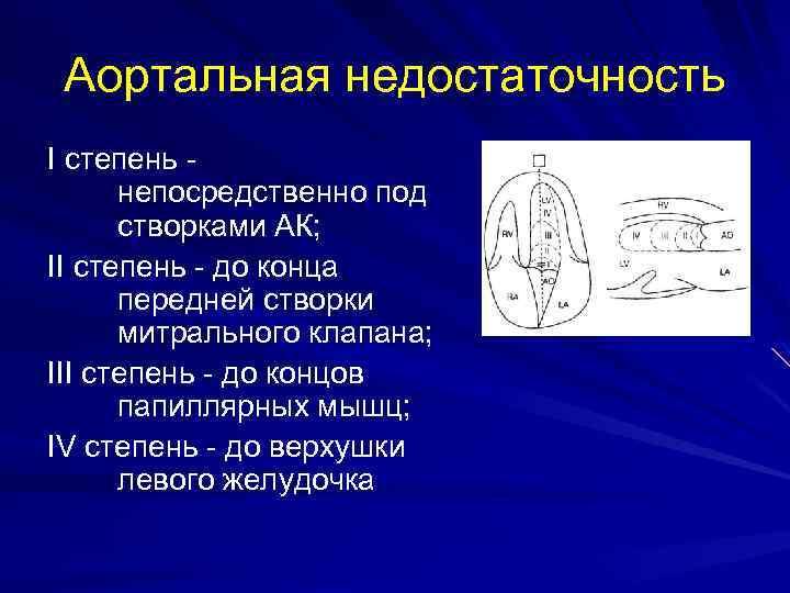 Аортальная недостаточность I степень непосредственно под створками АК; II степень - до конца передней