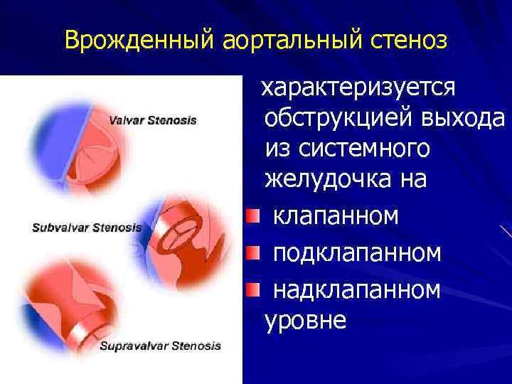 Врожденный аортальный стеноз характеризуется обструкцией выхода из системного желудочка на клапанном подклапанном надклапанном уровне