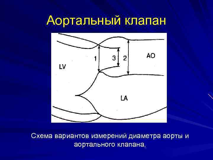 Аортальный клапан Схема вариантов измерений диаметра аорты и аортального клапана,