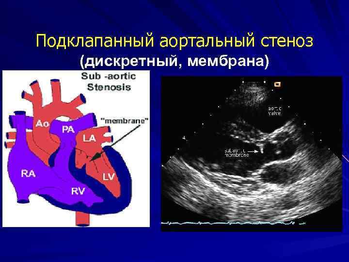 Подклапанный аортальный стеноз (дискретный, мембрана)