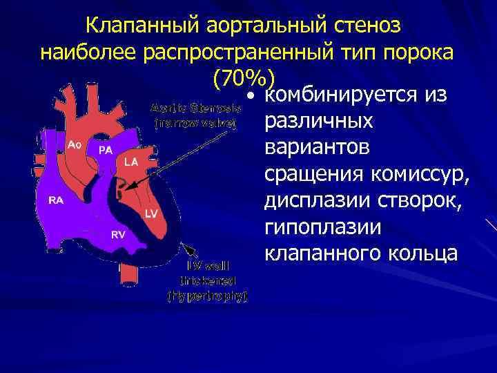 Клапанный аортальный стеноз наиболее распространенный тип порока (70%) • комбинируется из различных вариантов сращения