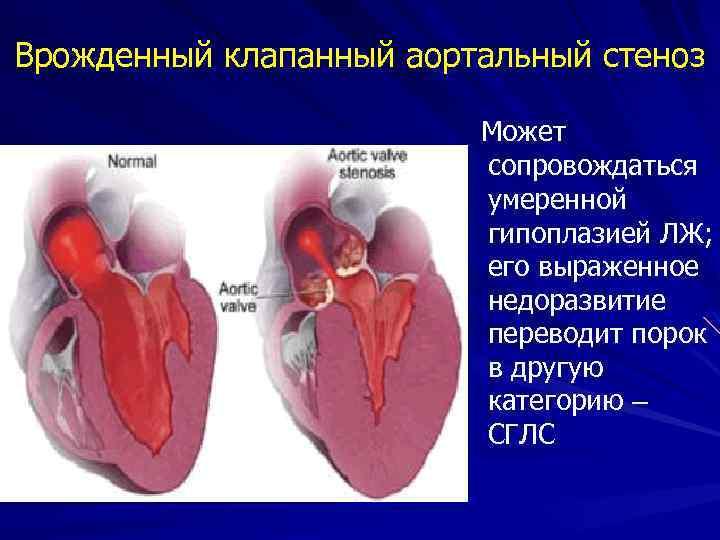 Врожденный клапанный аортальный стеноз Может сопровождаться умеренной гипоплазией ЛЖ; его выраженное недоразвитие переводит порок