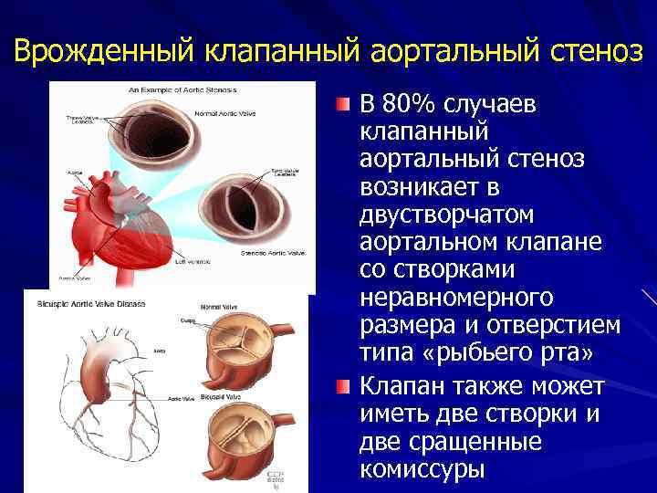 Врожденный клапанный аортальный стеноз В 80% случаев клапанный аортальный стеноз возникает в двустворчатом аортальном