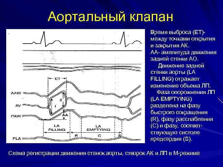 Аортальный клапан Время выброса (ЕТ)между точками открытия и закрытия АК. АА- амплитуда движения задней