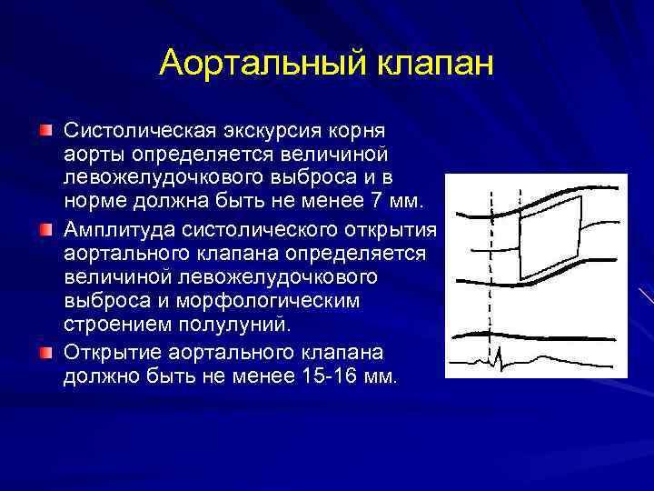 Аортальный клапан Систолическая экскурсия корня аорты определяется величиной левожелудочкового выброса и в норме должна
