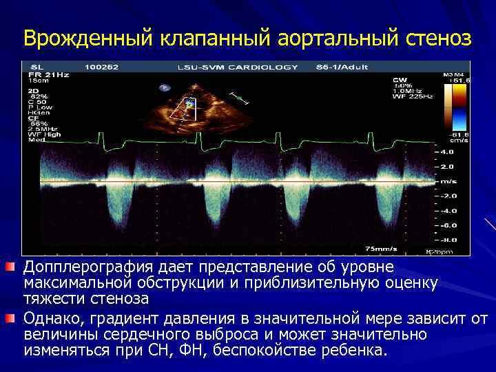 Врожденный клапанный аортальный стеноз Допплерография дает представление об уровне максимальной обструкции и приблизительную оценку