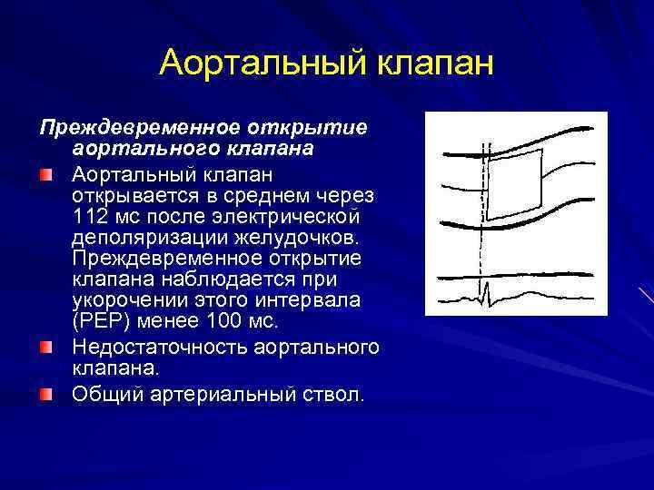 Аортальный клапан Преждевременное открытие аортального клапана Аортальный клапан открывается в среднем через 112 мс