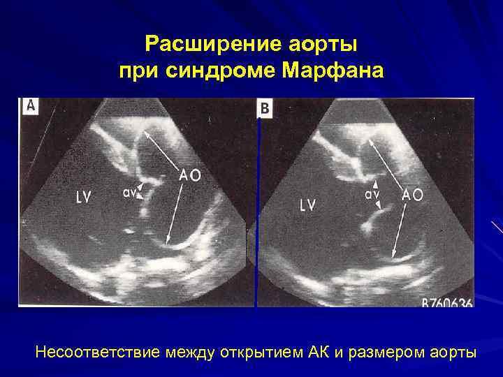 Расширение аорты при синдроме Марфана Несоответствие между открытием АК и размером аорты