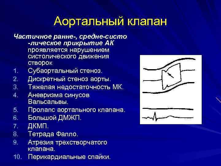 Аортальный клапан Частичное ранне-, средне-систо -лическое прикрытие АК проявляется нарушением систолического движения створок 1.