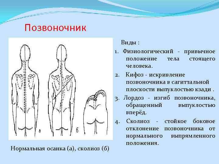 Позвоночник Нормальная осанка (а), сколиоз (б) Виды : 1. Физиологический - привычное положение тела