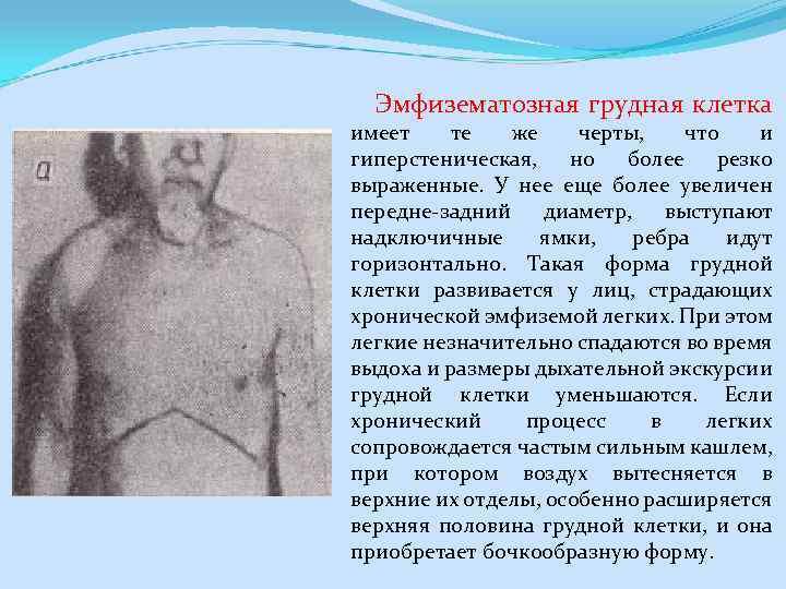 Эмфизематозная грудная клетка имеет те же черты, что и гиперстеническая, но более резко