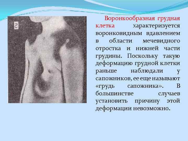 Воронкообразная грудная клетка Характеризуется воронковидным вдавлением в области мечевидного отростка и нижней части