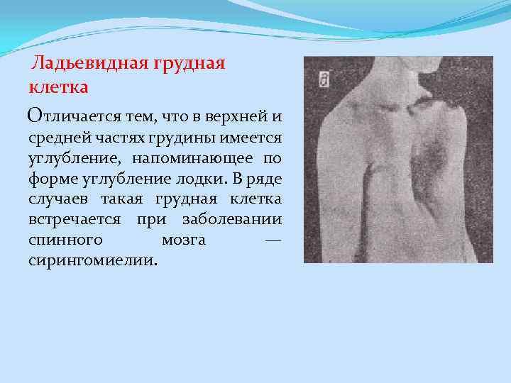 Ладьевидная грудная клетка Отличается тем, что в верхней и средней частях грудины имеется