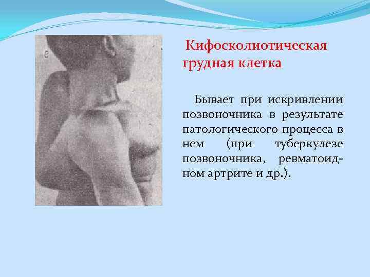 Кифосколиотическая грудная клетка Бывает при искривлении позвоночника в результате патологического процесса в нем