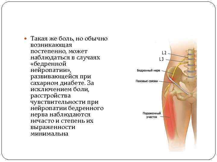 Такая же боль, но обычно возникающая постепенно, может наблюдаться в случаях «бедренной нейропатии»