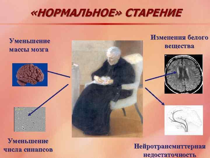 «НОРМАЛЬНОЕ» СТАРЕНИЕ Уменьшение массы мозга Уменьшение числа синапсов Изменения белого вещества Нейротрансмиттерная недостаточность