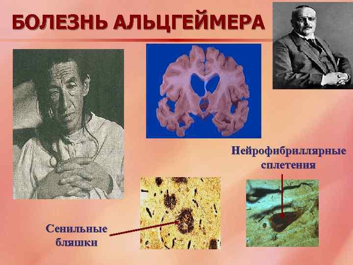 БОЛЕЗНЬ АЛЬЦГЕЙМЕРА Нейрофибриллярные сплетения Сенильные бляшки