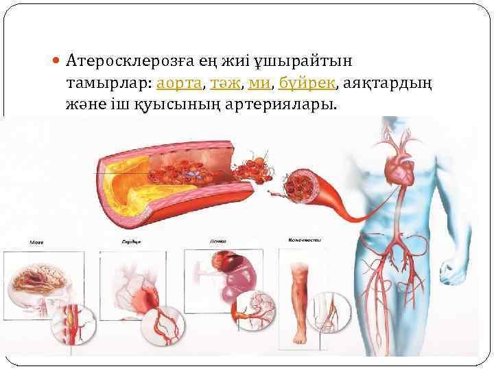 Атеросклерозға ең жиі ұшырайтын тамырлар: аорта, тәж, ми, бүйрек, аяқтардың және іш қуысының
