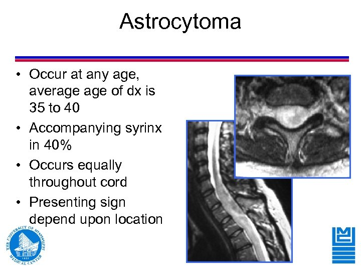 Astrocytoma • Occur at any age, average of dx is 35 to 40 •
