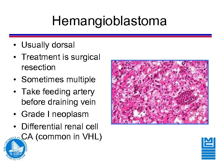 Hemangioblastoma • Usually dorsal • Treatment is surgical resection • Sometimes multiple • Take