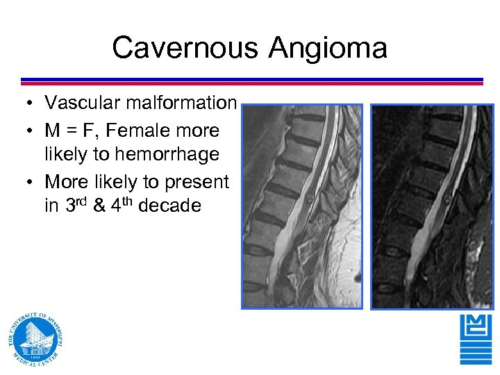 Cavernous Angioma • Vascular malformation • M = F, Female more likely to hemorrhage