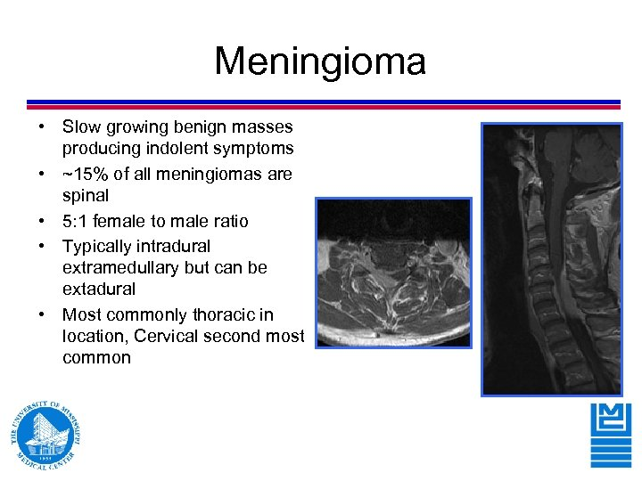 Meningioma • Slow growing benign masses producing indolent symptoms • ~15% of all meningiomas