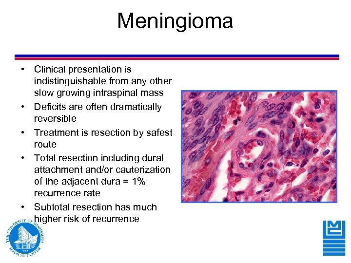 Meningioma • Clinical presentation is indistinguishable from any other slow growing intraspinal mass •