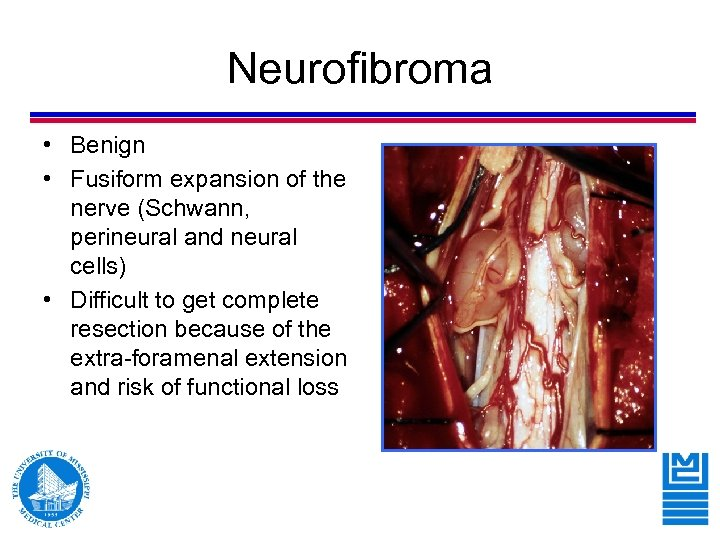 Neurofibroma • Benign • Fusiform expansion of the nerve (Schwann, perineural and neural cells)