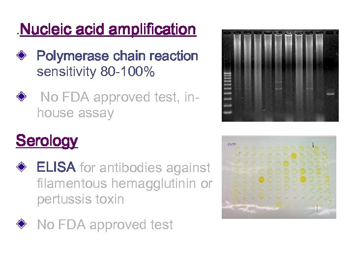 . Nucleic acid amplification Polymerase chain reaction sensitivity 80 -100% No FDA approved test,