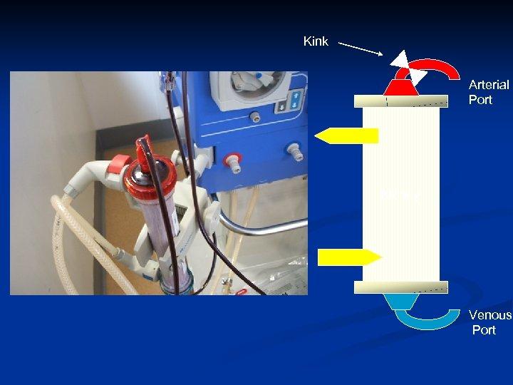 Kink Arterial Port Kidney Venous Port