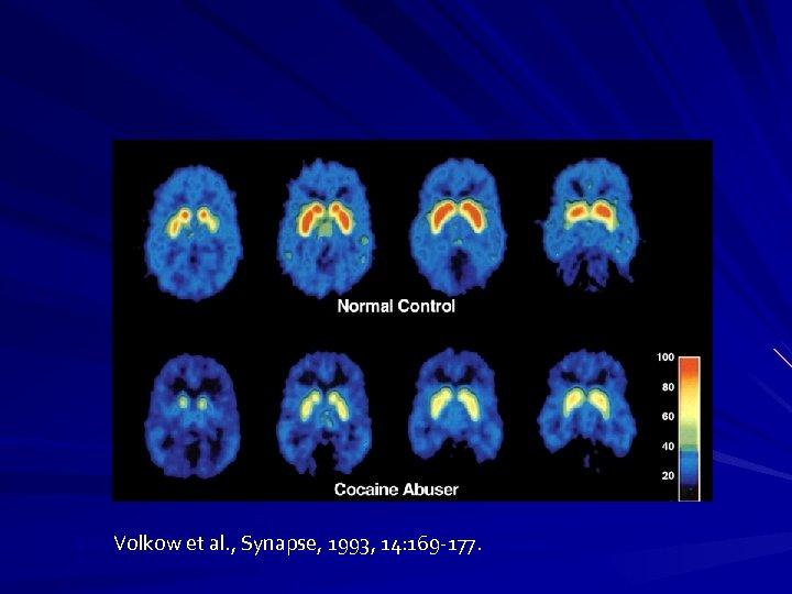 VVVVolkow et al. , Synapse, 1993, 14: 169 -177.
