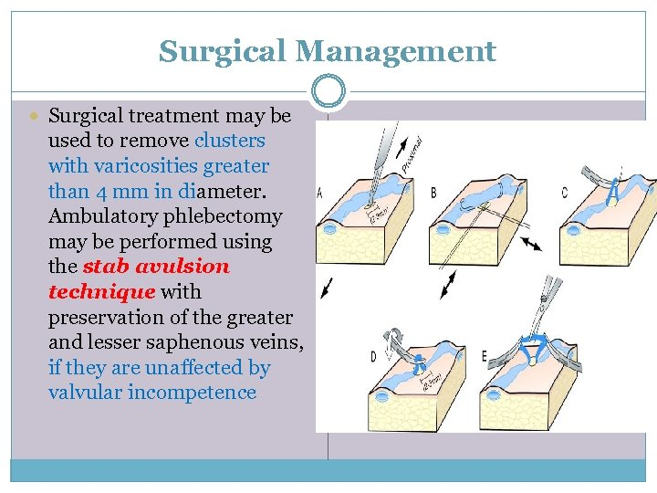 Surgical Management Surgical treatment may be used to remove clusters with varicosities greater than