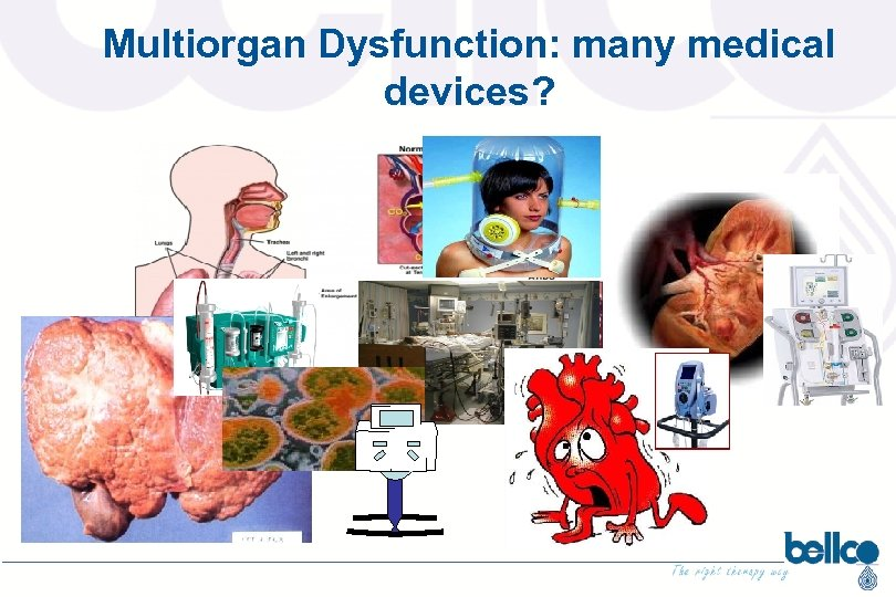 Multiorgan Dysfunction: many medical devices?