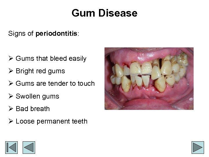 Gum Disease Signs of periodontitis: Ø Gums that bleed easily Ø Bright red gums