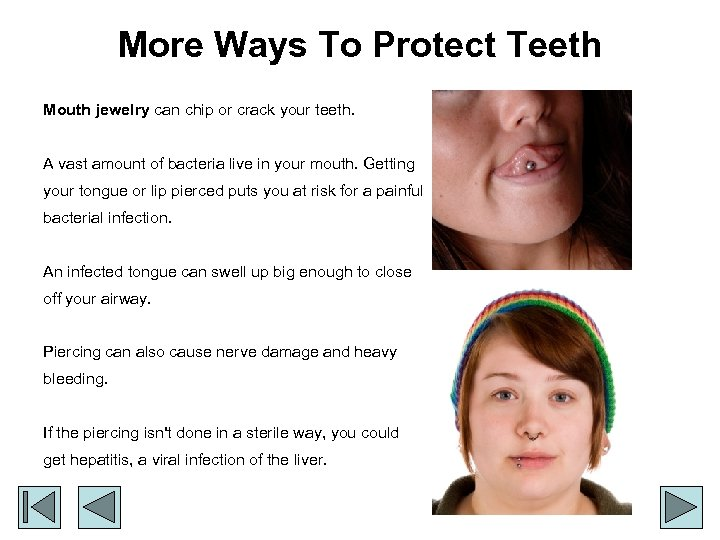 More Ways To Protect Teeth Mouth jewelry can chip or crack your teeth. A