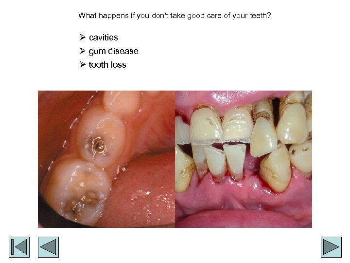 What happens if you don't take good care of your teeth? Ø cavities Ø