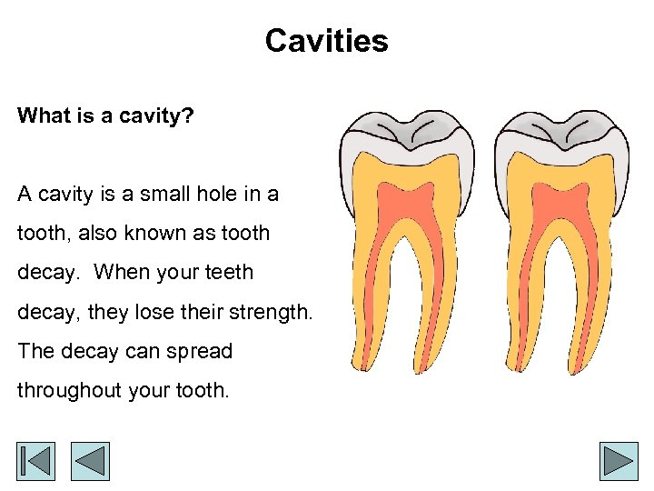 Cavities What is a cavity? A cavity is a small hole in a tooth,