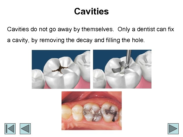 Cavities do not go away by themselves. Only a dentist can fix a cavity,