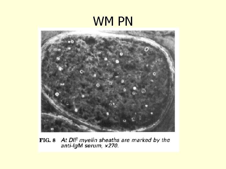 WM PN Vital 1997